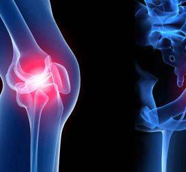 Предстоят безплатни прегледи от ортопеда д-р Самер Ганум