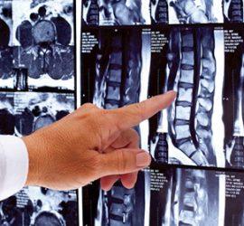 """Прегледи при ортопед се извършват в """"Уни Хоспитал"""""""